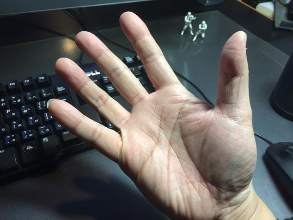右手のラッキーM
